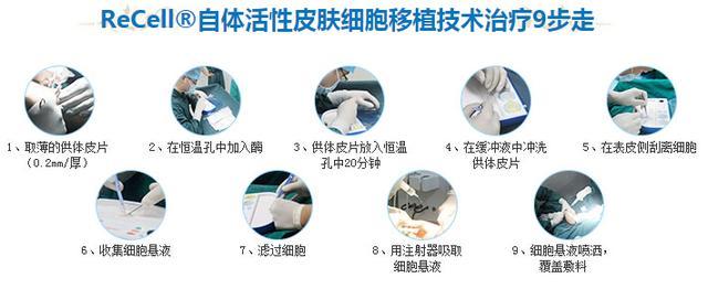白癜风怎么治?白癜风治疗技术已有重大新突破,数百万人已被成功治愈