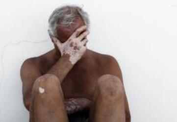 白癜风的病因与什么有关?患上白癜风该怎么办?
